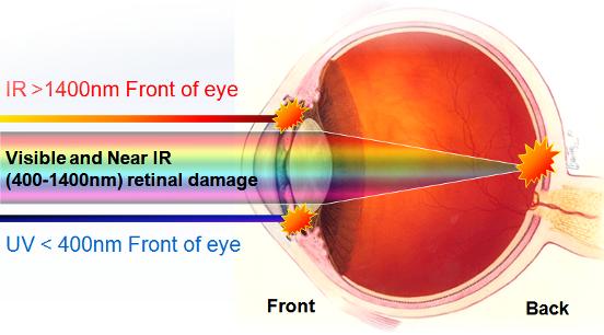 lesiones ocasionada por no utilizar protección laser